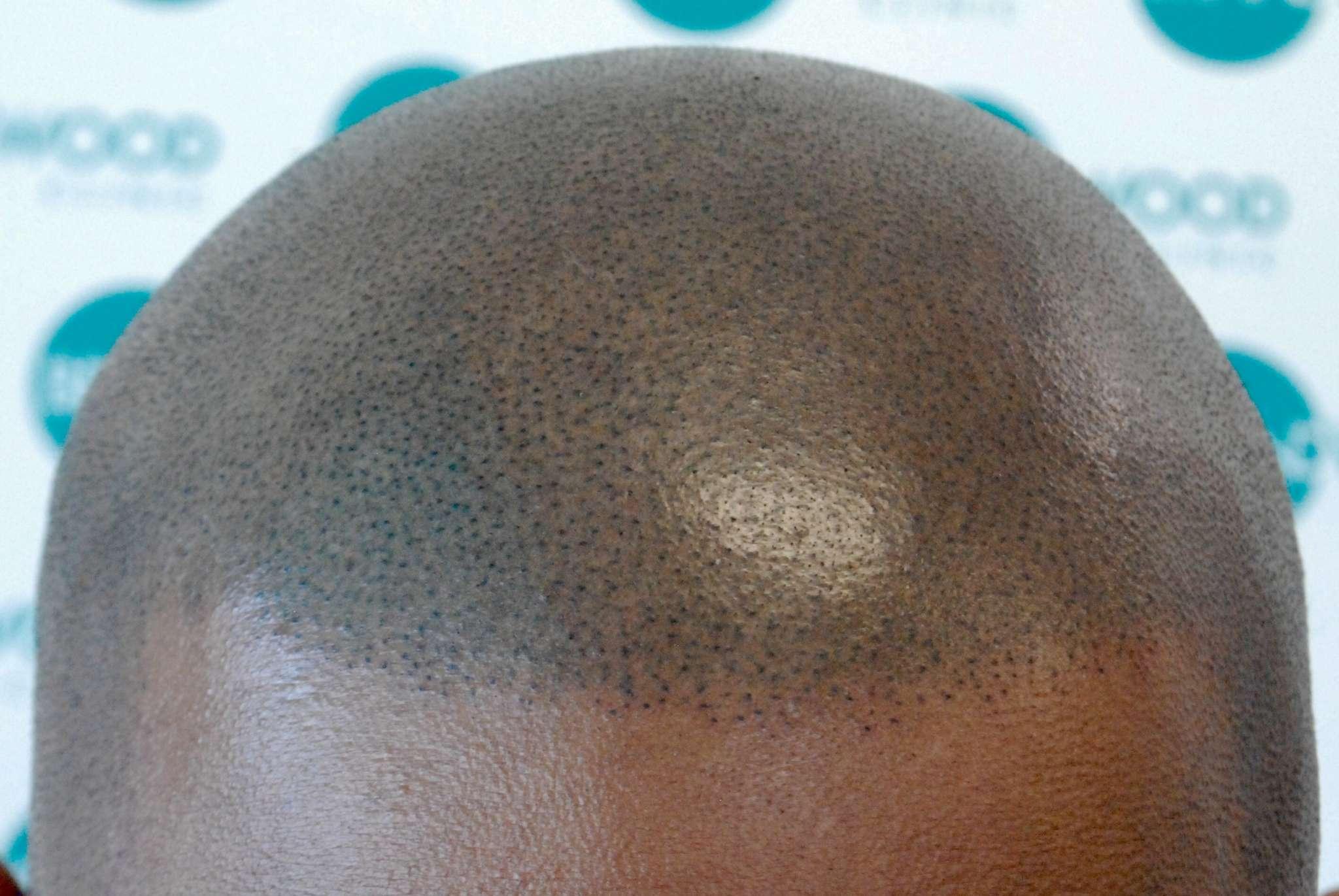 Black Male Skin using Alivio Pigment