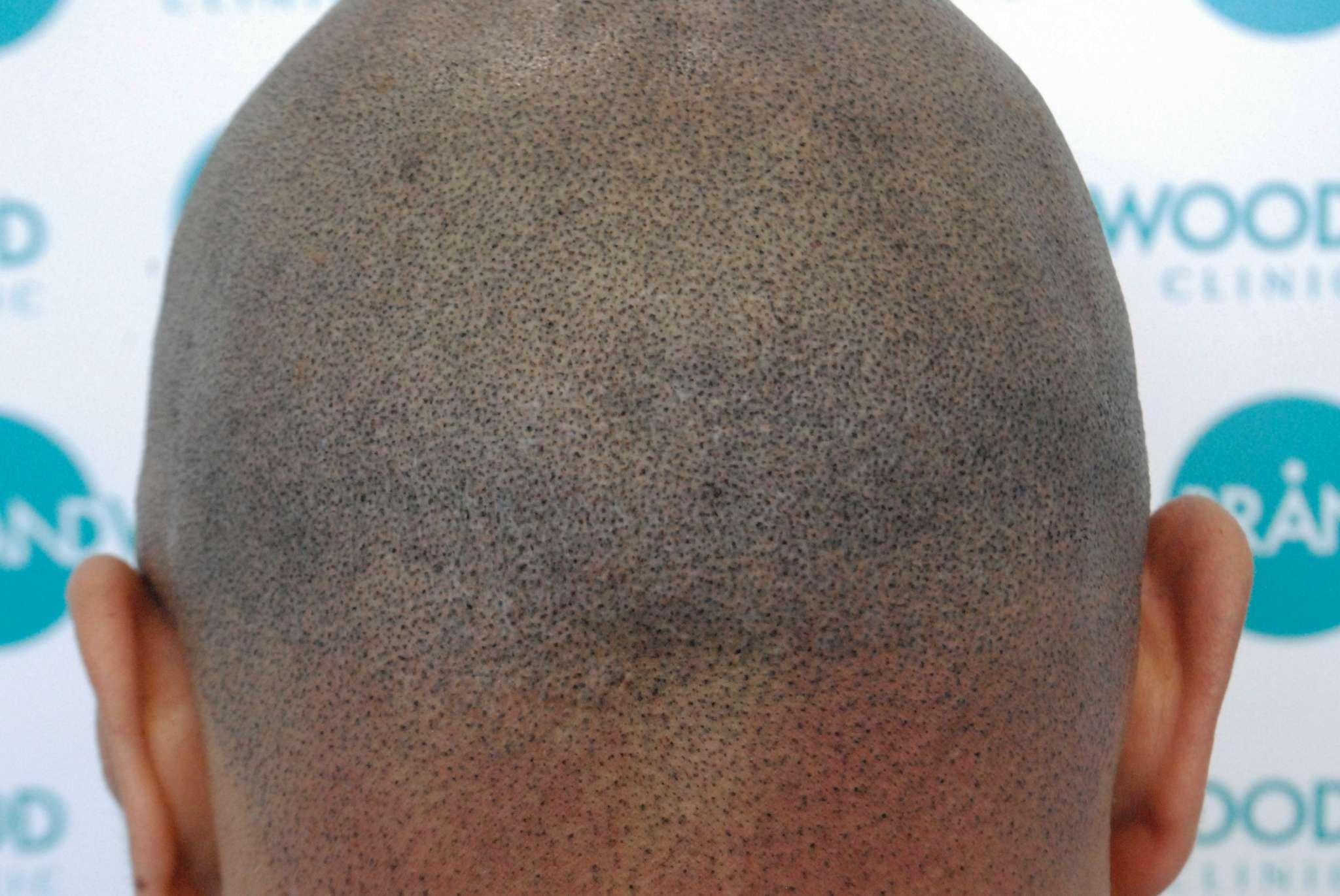 Scar coverage using Alivio Pigment on Light Asian skin tone
