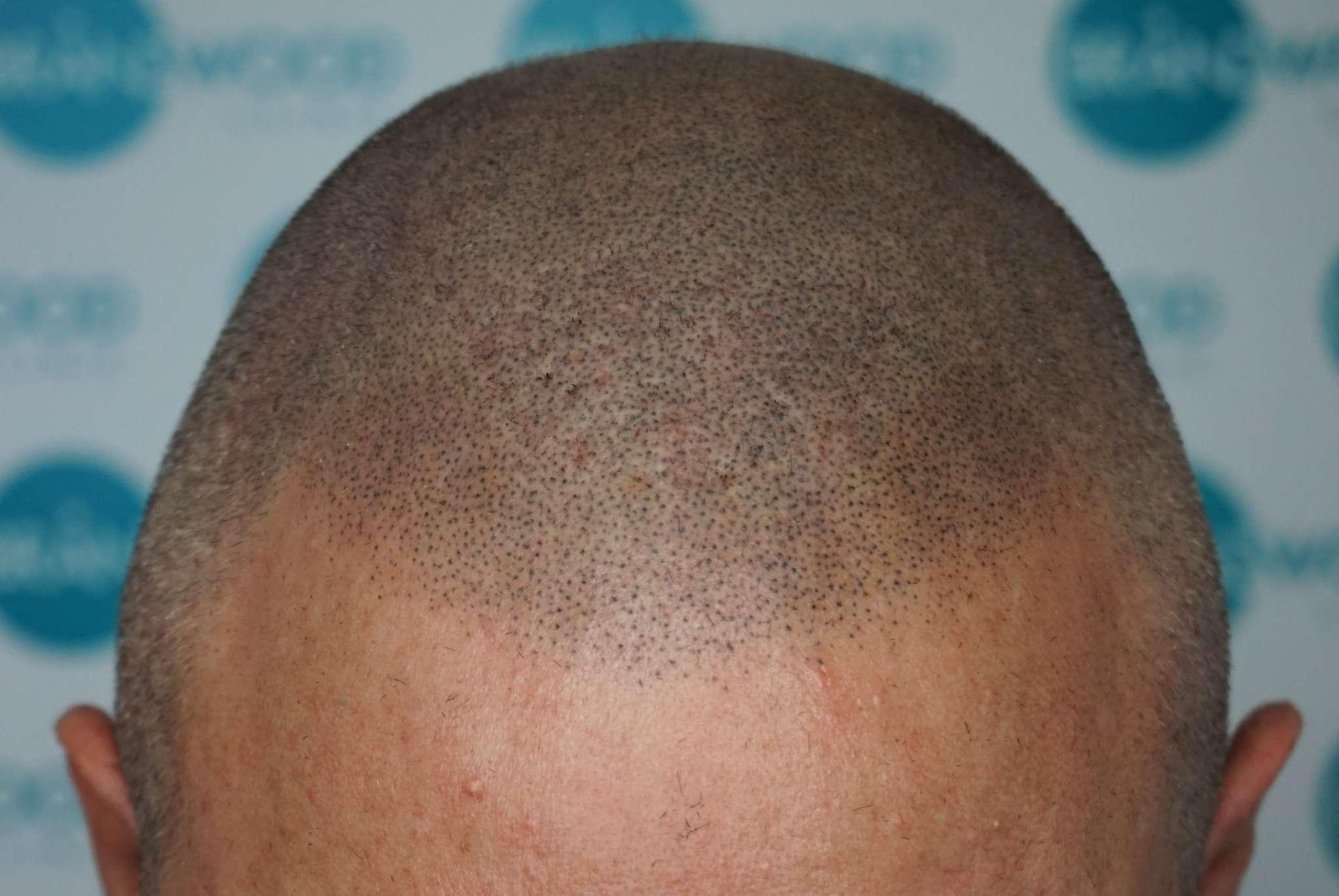 Scar coverage using Alivio Pigment on White Male
